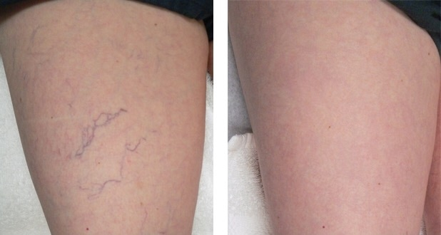 Spider Veins Before After